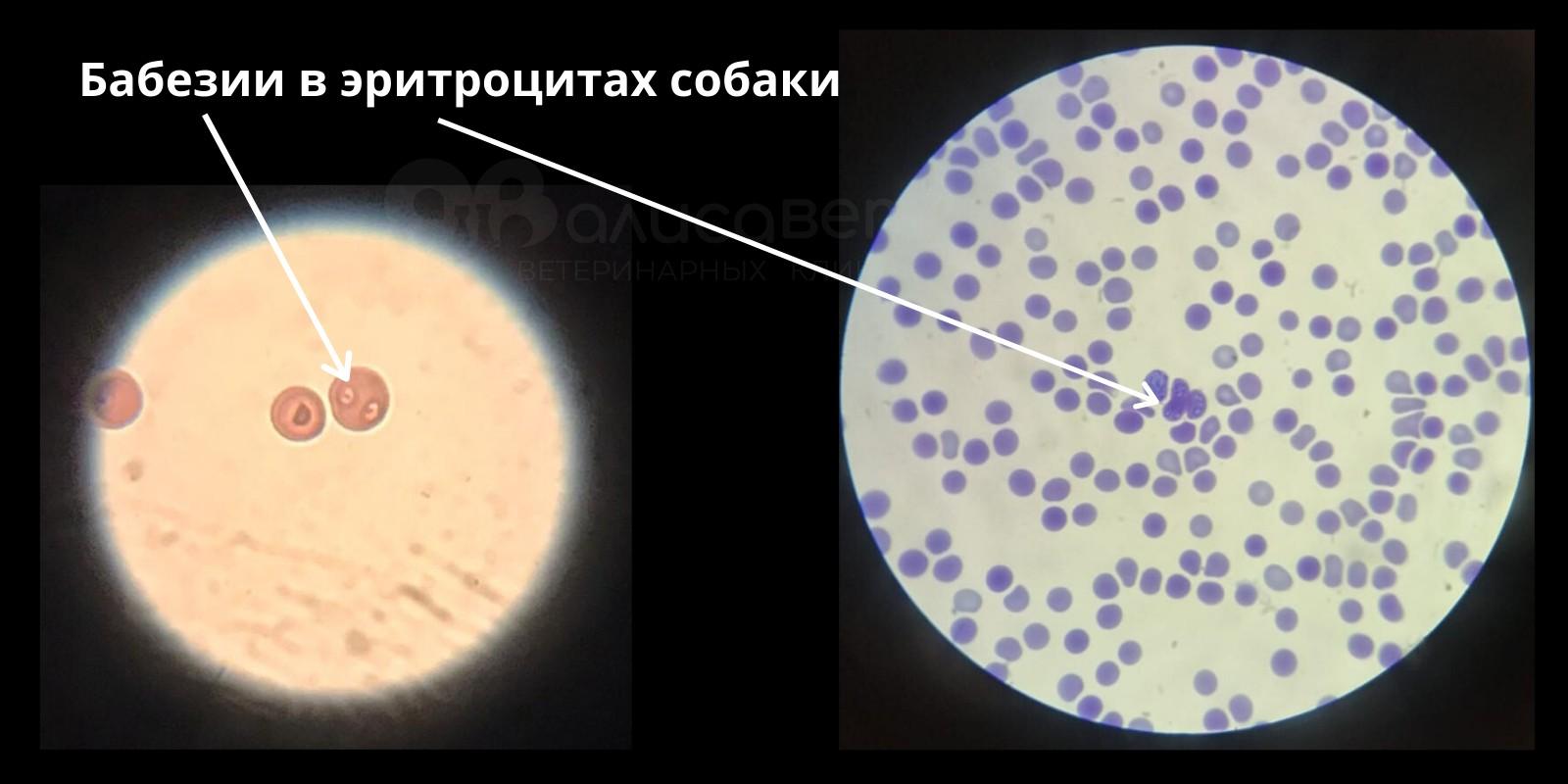 Анализы на пироплазмоз