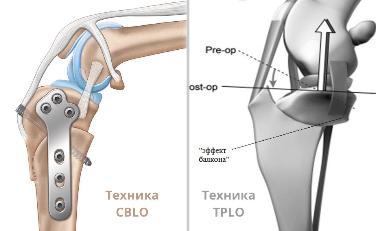 техники CBLO и TPLO