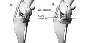 техника TPLO при разрыве передней крестообразной связки
