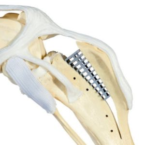 техника TTA2 при разрыве передней крестообразной связки у собак