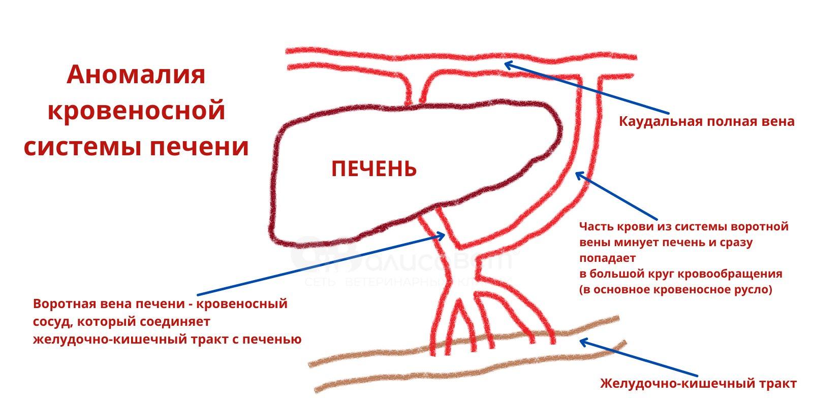 аномалия кровеносной системы печени
